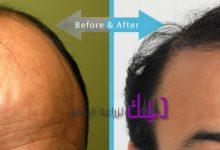 Photo of مركز دكتور هاكان دوقاناي لزراعة الشعر في تركيا