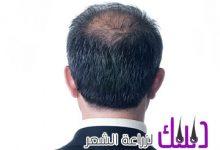Photo of مركز د بترا Dr Batras لزراعه الشعر في الامارات
