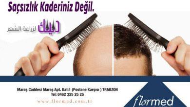 Photo of مركز فلورميد لزراعة الشعر في تركيا والشرق الأوسط