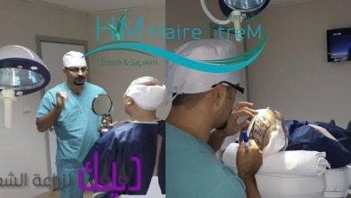 Photo of مركز hairextrem لزراعة الشعر في تركيا والشرق الأوسط