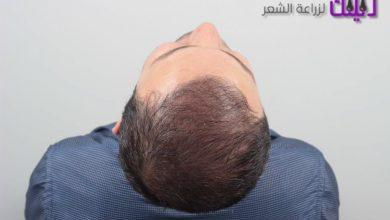 Photo of مركز iohair لزراعة الشعر في تركيا والشرق الأوسط