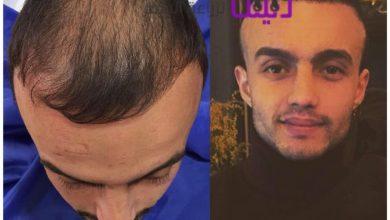 Photo of مركز نيو هير بلس لزراعة الشعر في تركيا والشرق الآوسط
