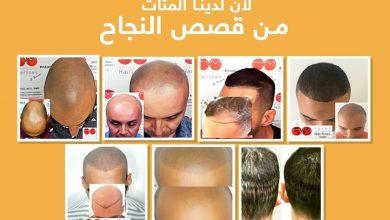 Photo of مركز Egypt International Hairlines لزراعة الشعر في مصر