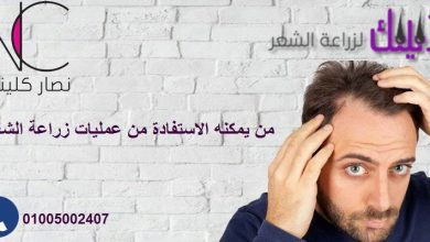 Photo of مركز نصار كلينيك لزراعة الشعر في مصر