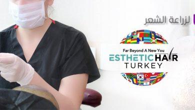 Photo of عيادة الشعر الجمالي لزراعة الشعر في تركيا