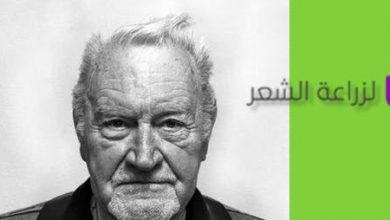 Photo of اعراض تساقط الشعر وعوامل وأسباب التساقط