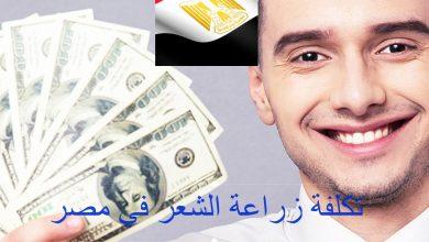 Photo of تكلفة زراعة الشعر في مصر بالجنيه المصري والدولار
