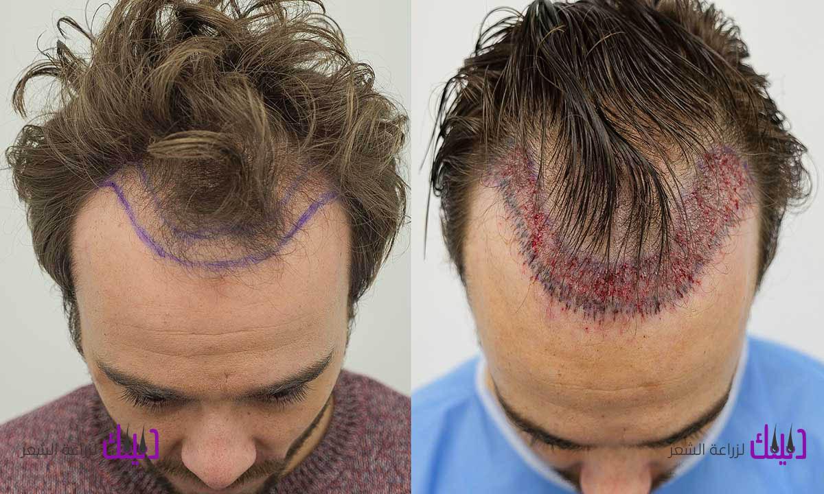 زراعة الشعر في مصر مركز ري شييب لجراحات التجميل والجلدية والليزر