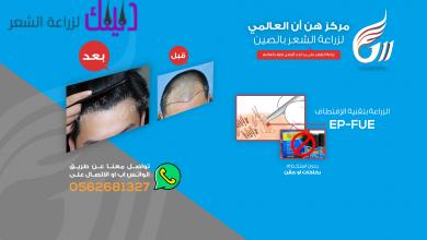 Photo of هن ان العالمي لزراعة الشعر في الصين والشرق الأوسط
