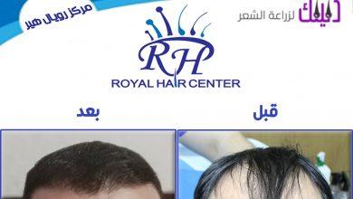Photo of مركز رويال هير – زراعة الشعر في تركيا