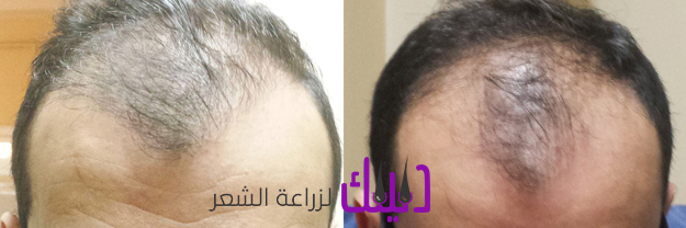 مركز استتيتيكاتور EstetikaTourلزراعة الشعر