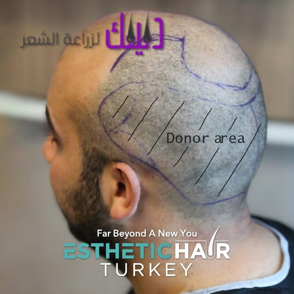 عيادة الشعر الجمالي