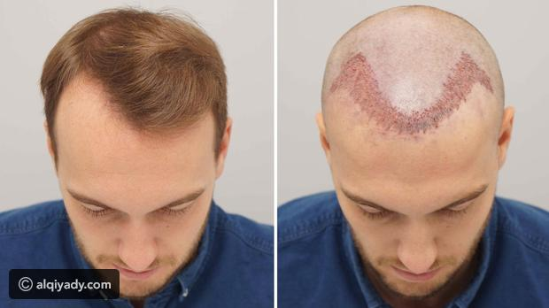 نتائج زراعة الشعر